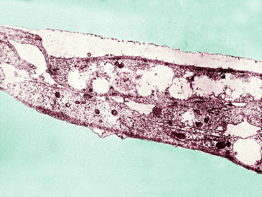 A Treponema Pallidum pode causar bouba e sífilis. Novos testes genéticos permitem aos pesquisadores distinguirem entre ...