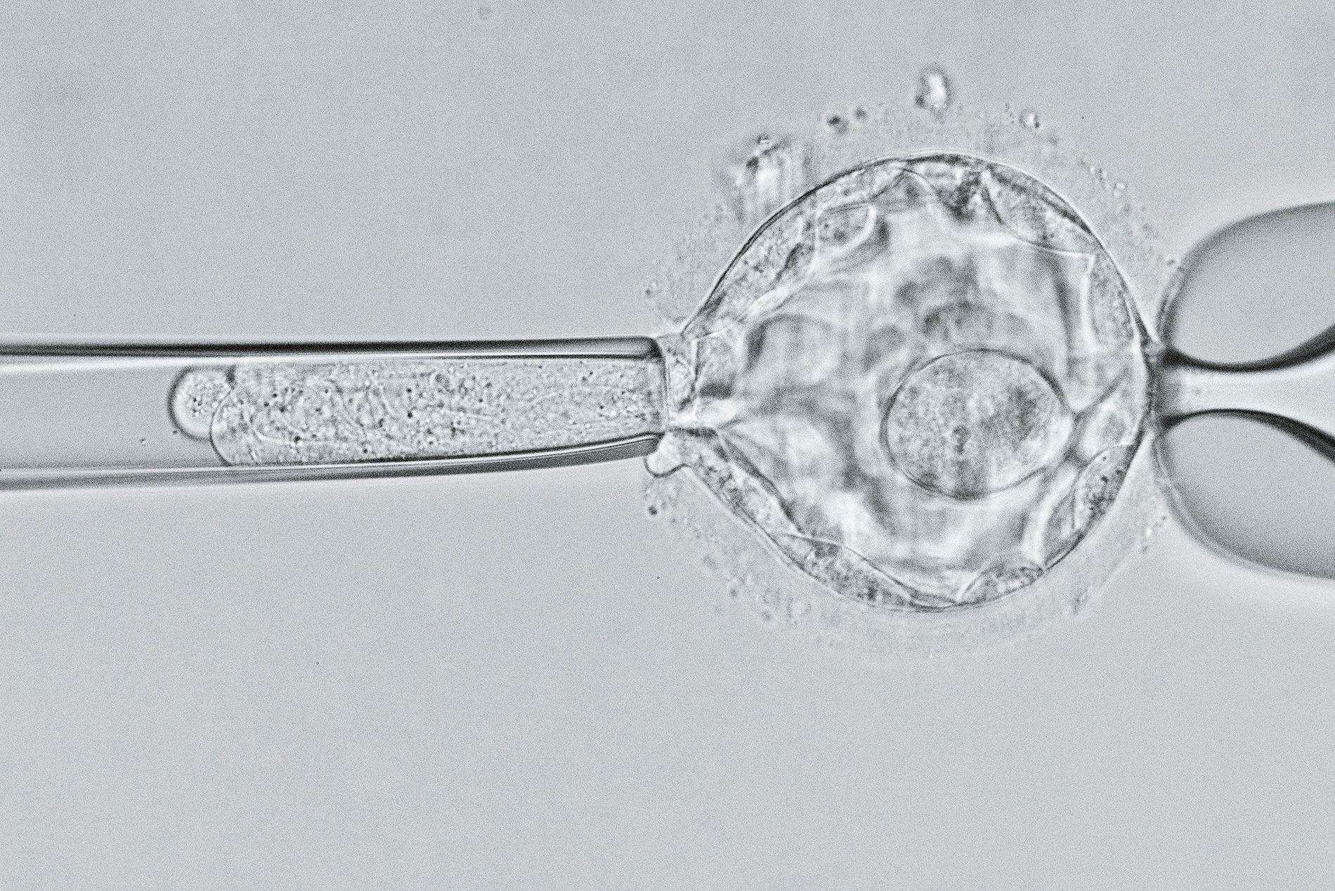 Primeiros bebês com genes editados correm risco de morte prematura