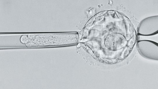 Cientistas examinam um embrião no estágio de blastocisto com cinco dias de vida em busca do ...