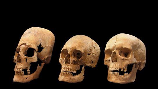 dna-hunos-alemanha-cranios-pontiagudos