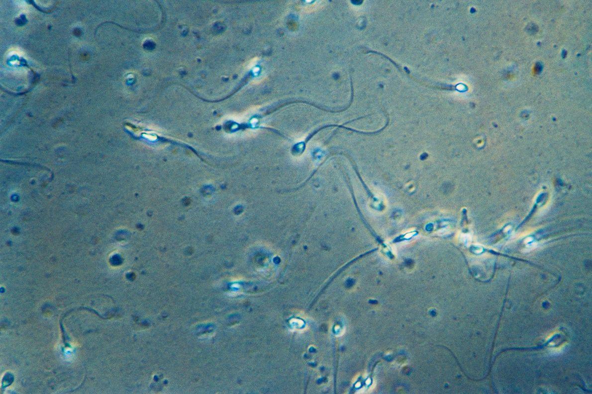 Cauda do espermatozoide tem formato surpreendente visto só agora