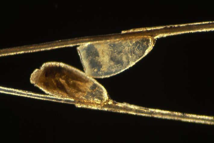 Lêndeas de piolhos se agarram ao cabelo humano, vistas através de um microscópio.
