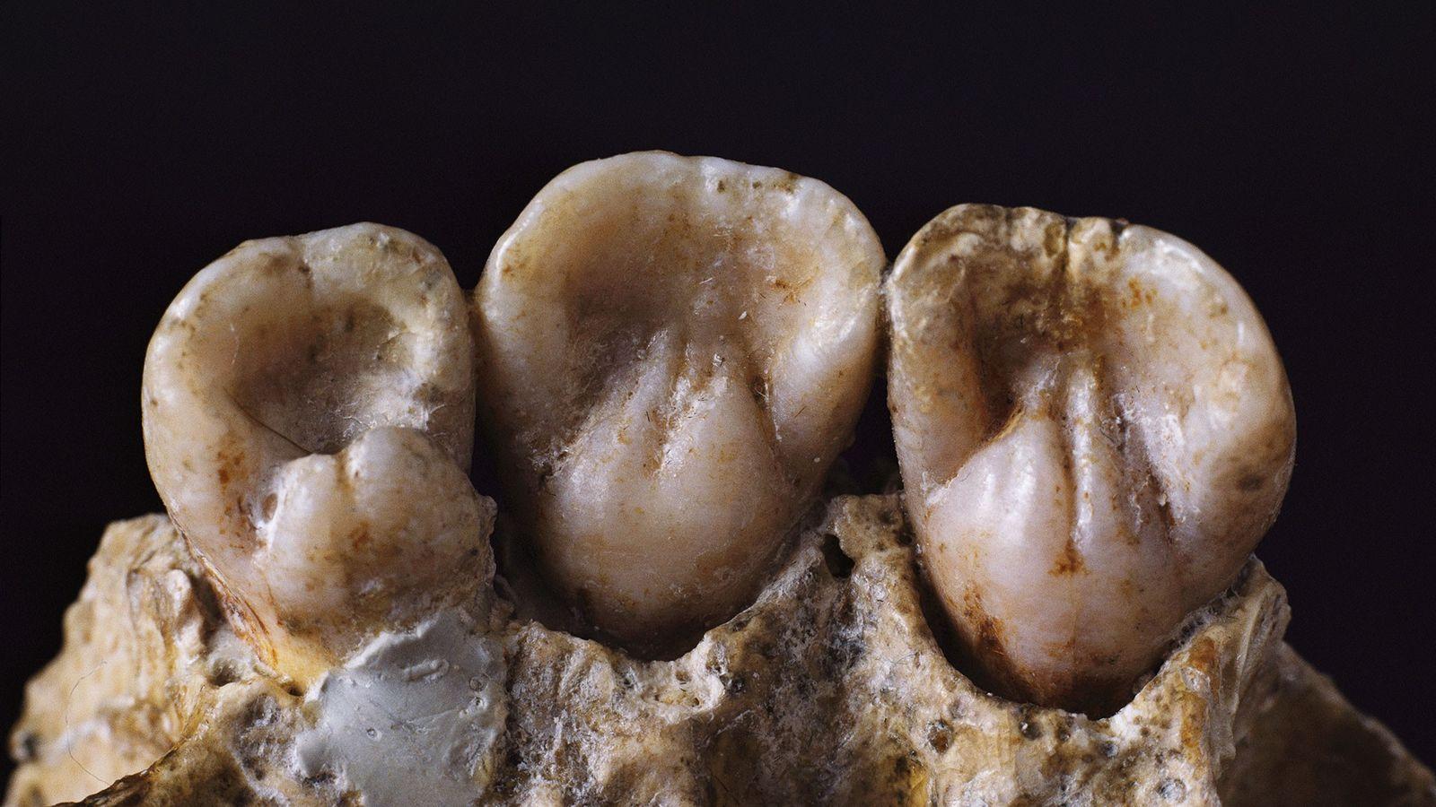 Semelhante aos dentes analisados no novo estudo, esses dentes podem conter seus próprios segredos sobre a ...