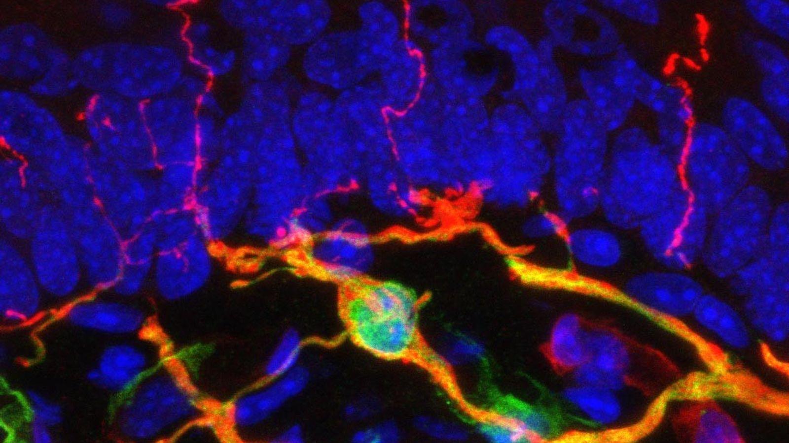 Uma imagem de microscópio mostra a estrutura de um órgão recém-descoberto chamado complexo nociceptor glio-neural, destacado ...