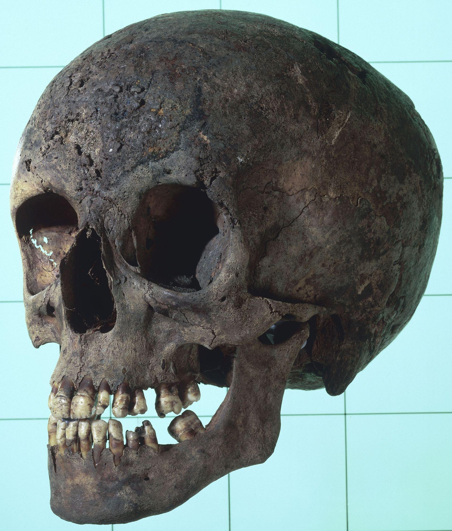 O crânio sifilítico de uma mulher com diversas lesões erosivas. Estas lesões são essenciais para identificar ...