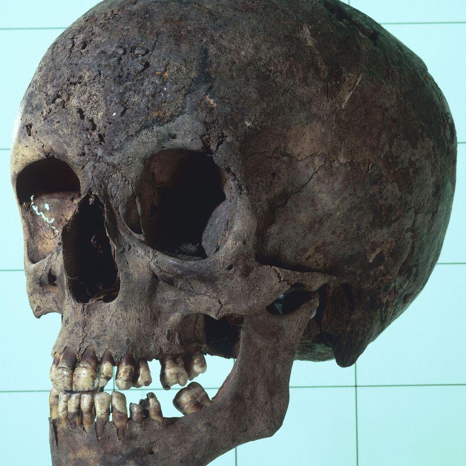 DNA da sífilis é extraído de ossos da era colonial