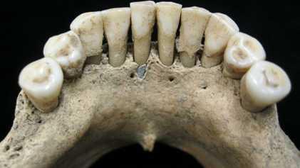 Escriba medieval enterrado há mil anos era mulher, revela arcada dentária