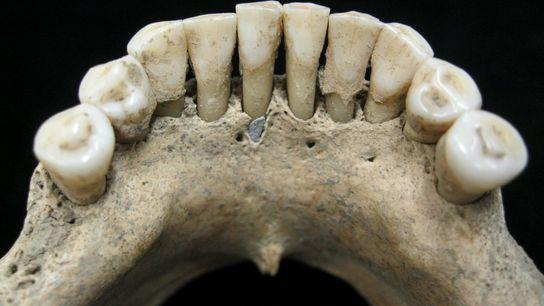 Uma partícula da preciosa lápis-lazúli está presa na placa dental fossilizada de uma mulher medieval.