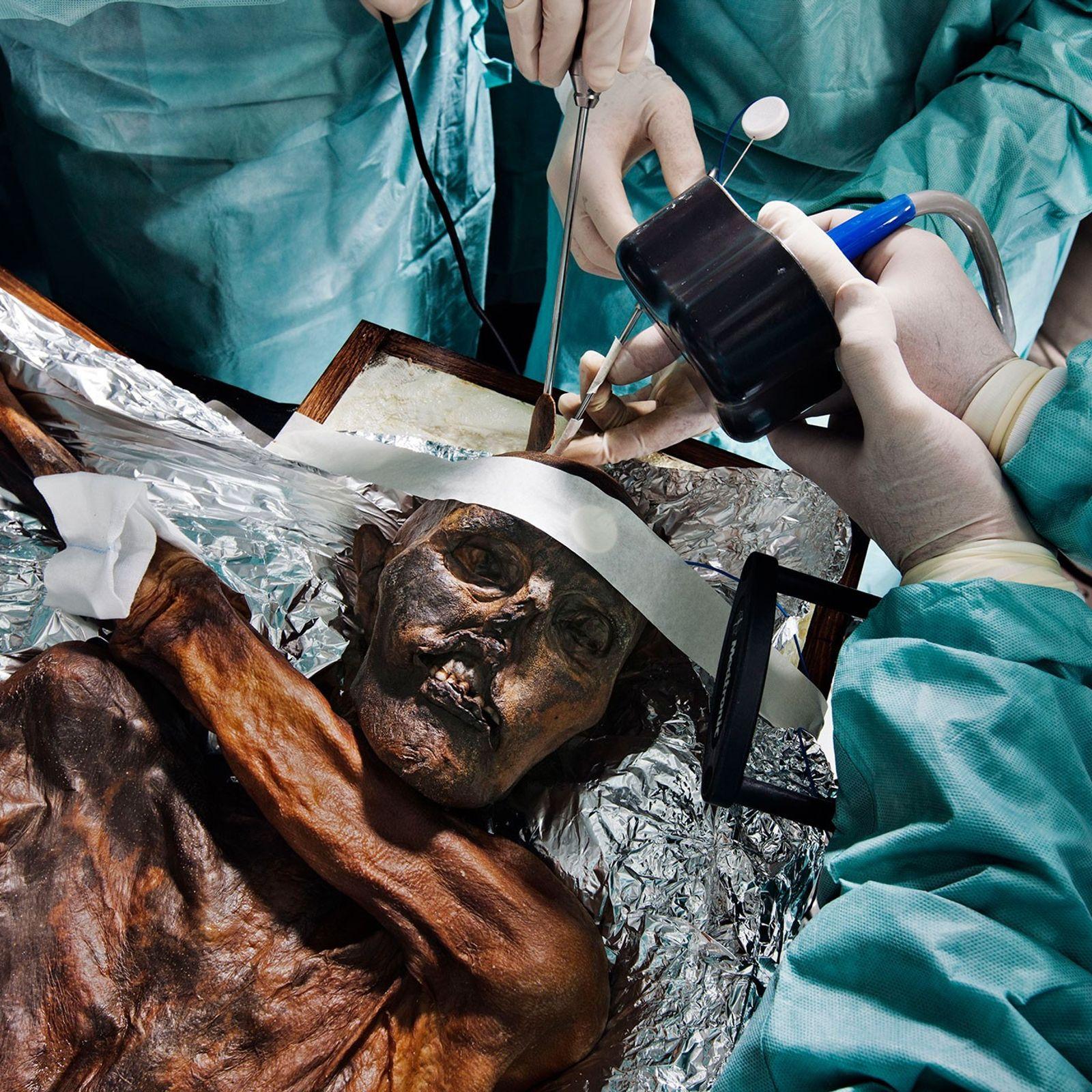 Os cientistas estudam os restos mortais de Ötzi, o Homem do Gelo, de 5,3 mil anos, ...