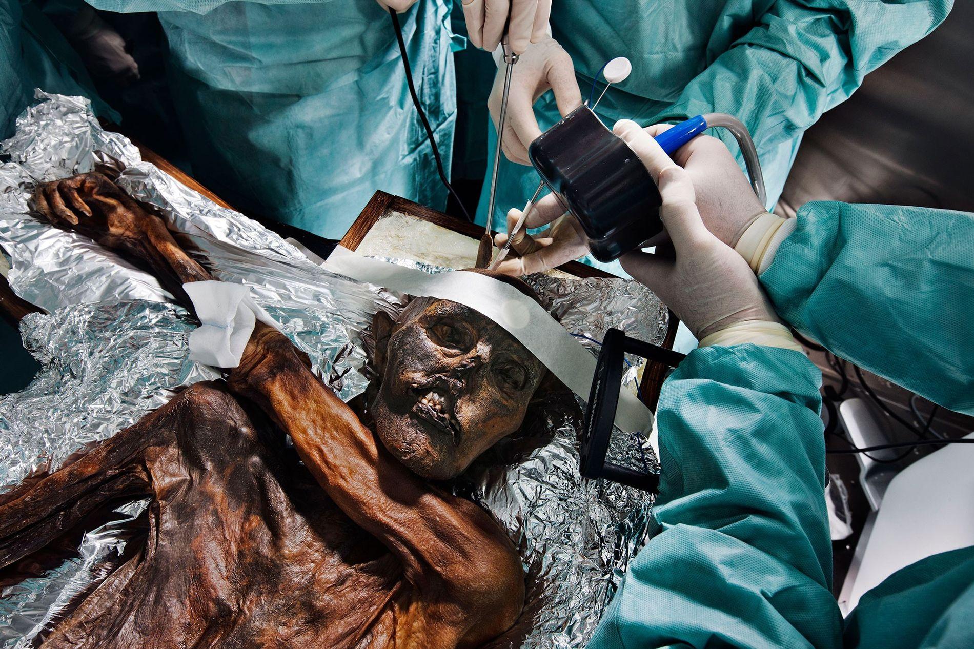Os cientistas estudam os restos mortais de Ötzi, o Homem do Gelo, de 5,3 mil anos, em busca de pistas sobre sua vida e morte.