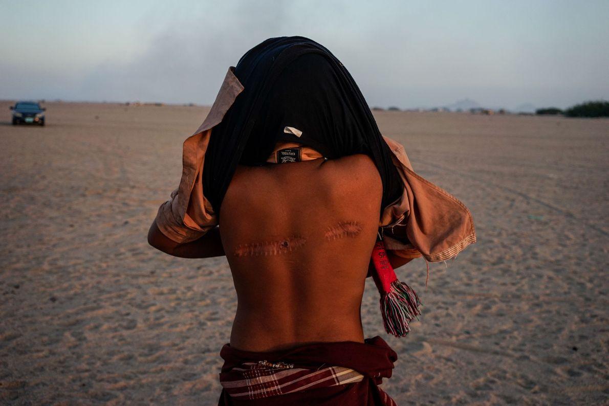 Esse jovem no distrito de Buraiqeh, a oeste de Aden, mostra cicatrizes de balas. Ele foi ...