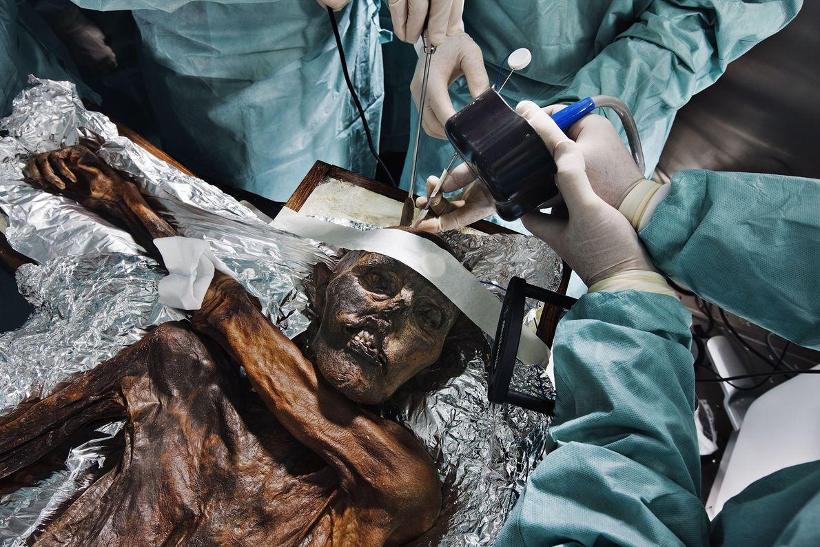 arqueologia-autopsia-homem-de-gelo