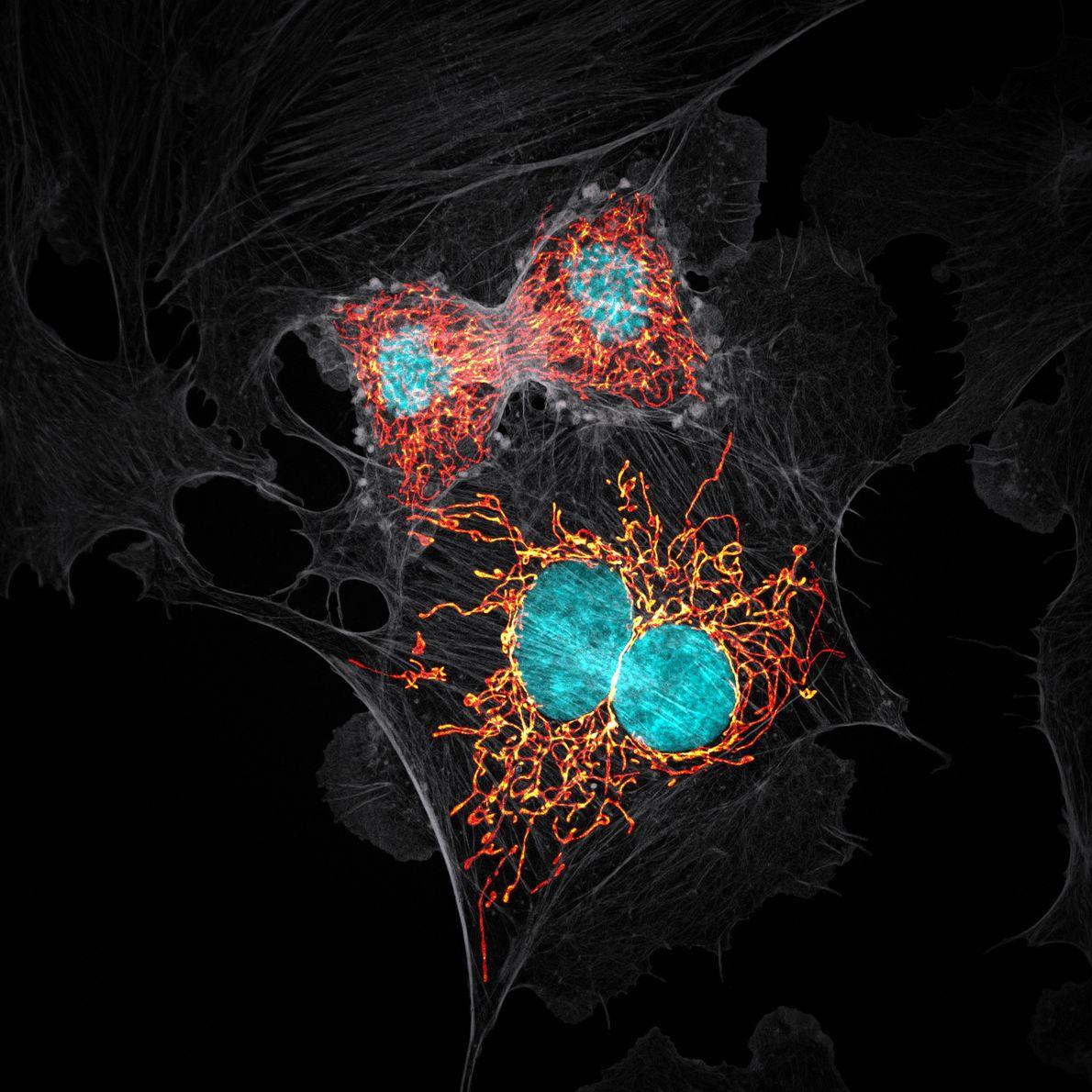Em 1979, os pesquisadores cultivaram células extraídas da artéria pulmonar de uma novilha, produzindo uma linhagem ...