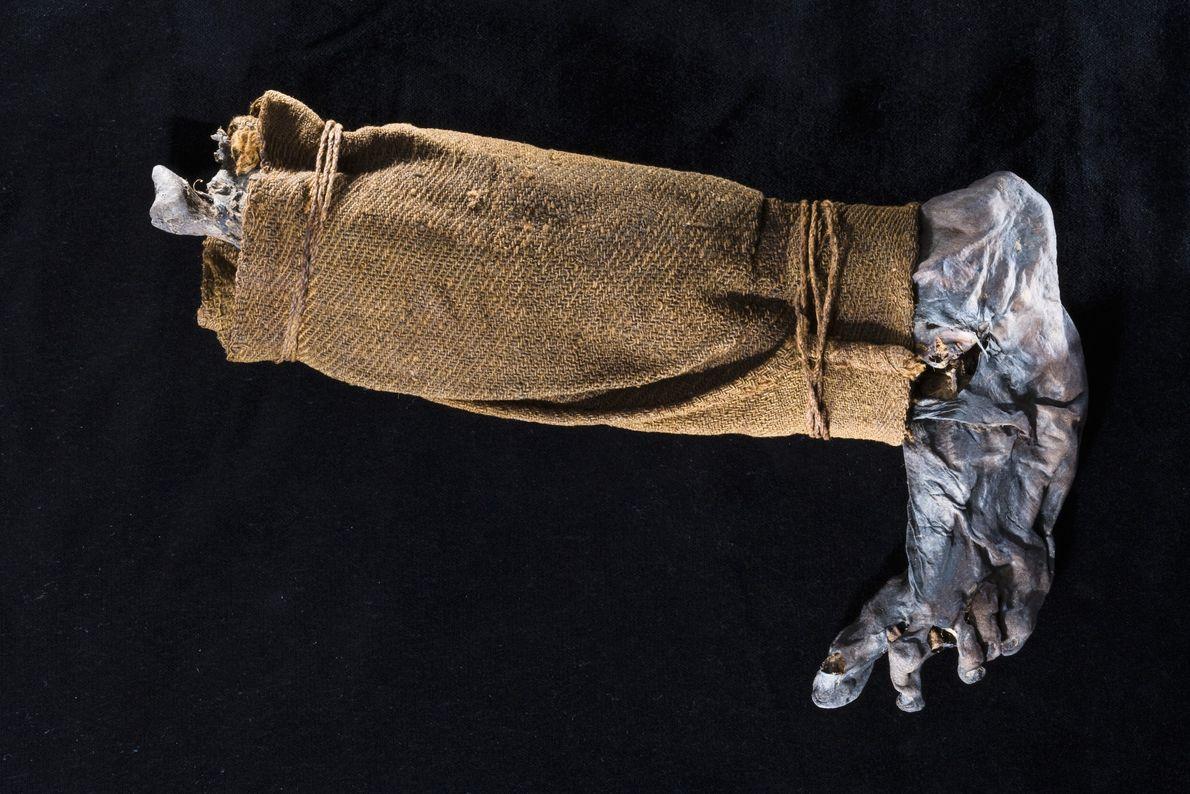 perna mumificada