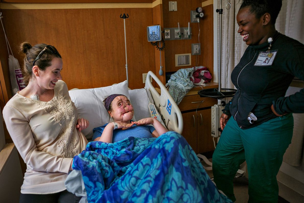 The evening before surgery, Katie, whose damaged face was reconstructed, gestures to show that she's excited ...