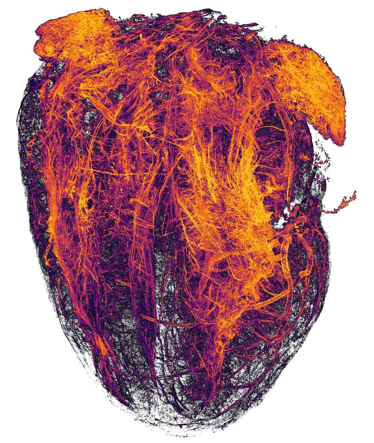 Estes filamentos alaranjados, fotografados por pesquisadores do Hospital Universitário de Essen, são vasos sanguíneos do coração ...