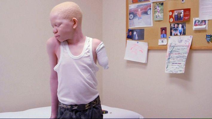Os albinos na Tanzânia