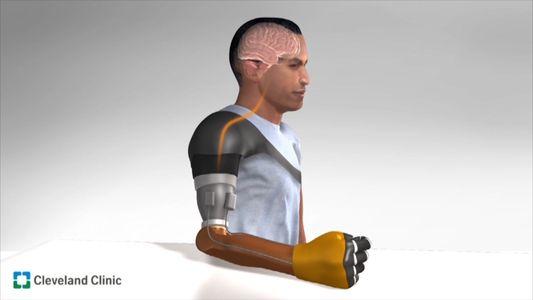 'Sensação' de movimento recriada em próteses de amputados