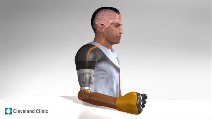 Sensação de movimento é recriada em prótese de amputado