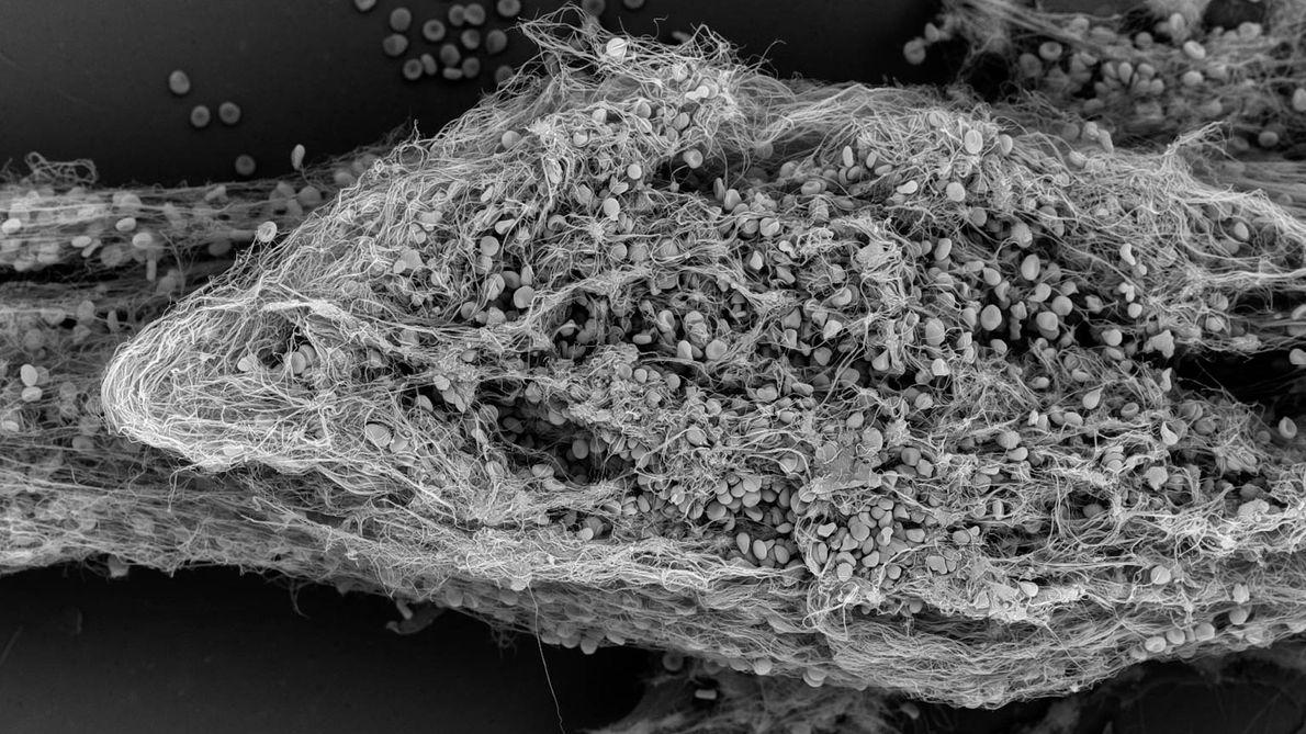 Imagem tridimensional de um coágulo (trombo) em chip-pulmão.