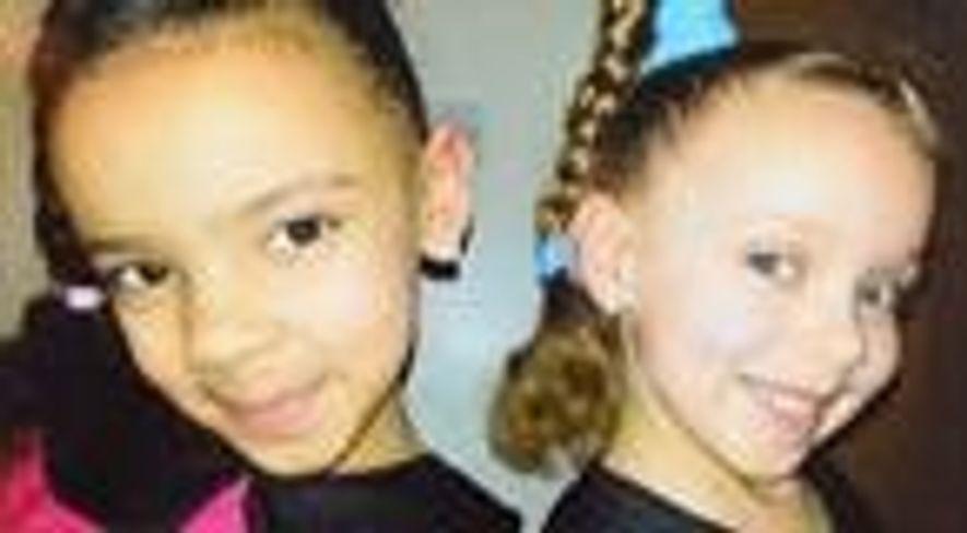 Conheça as gêmeas que nasceram com cores de pele diferentes