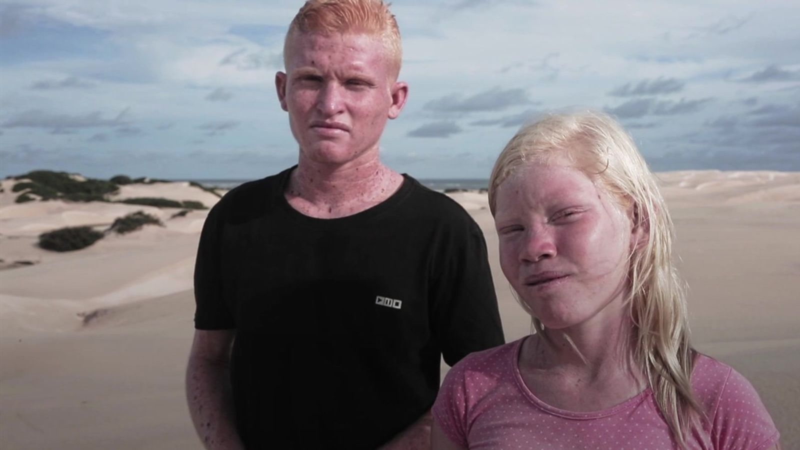 Situação dos albinos na Ilha dos Lençóis, Maranhão