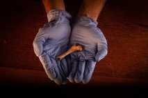Fêmur esquerdo de uma criança com idade estimada entre três meses e um ano encontrado no ...