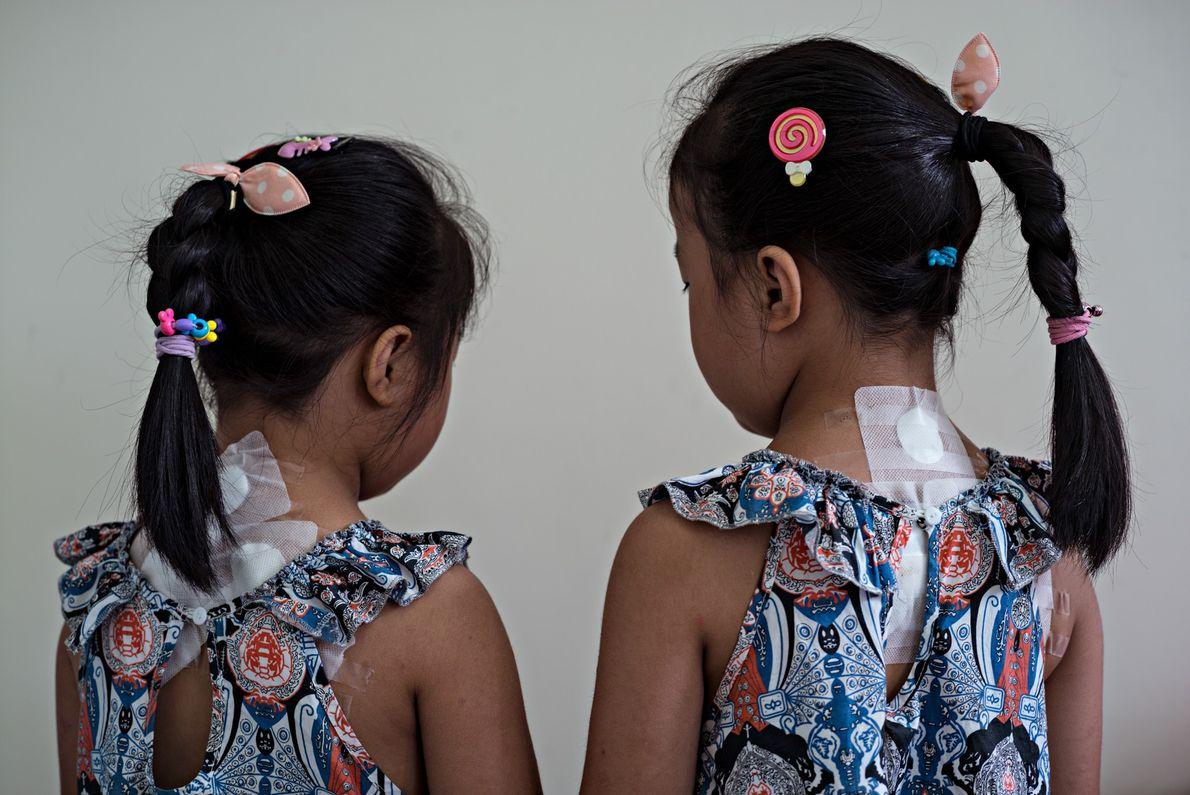 No hospital da Universidade de Medicina Tradicional Chinesa de Chengdu, na China, as irmãs gêmeas Zheng ...