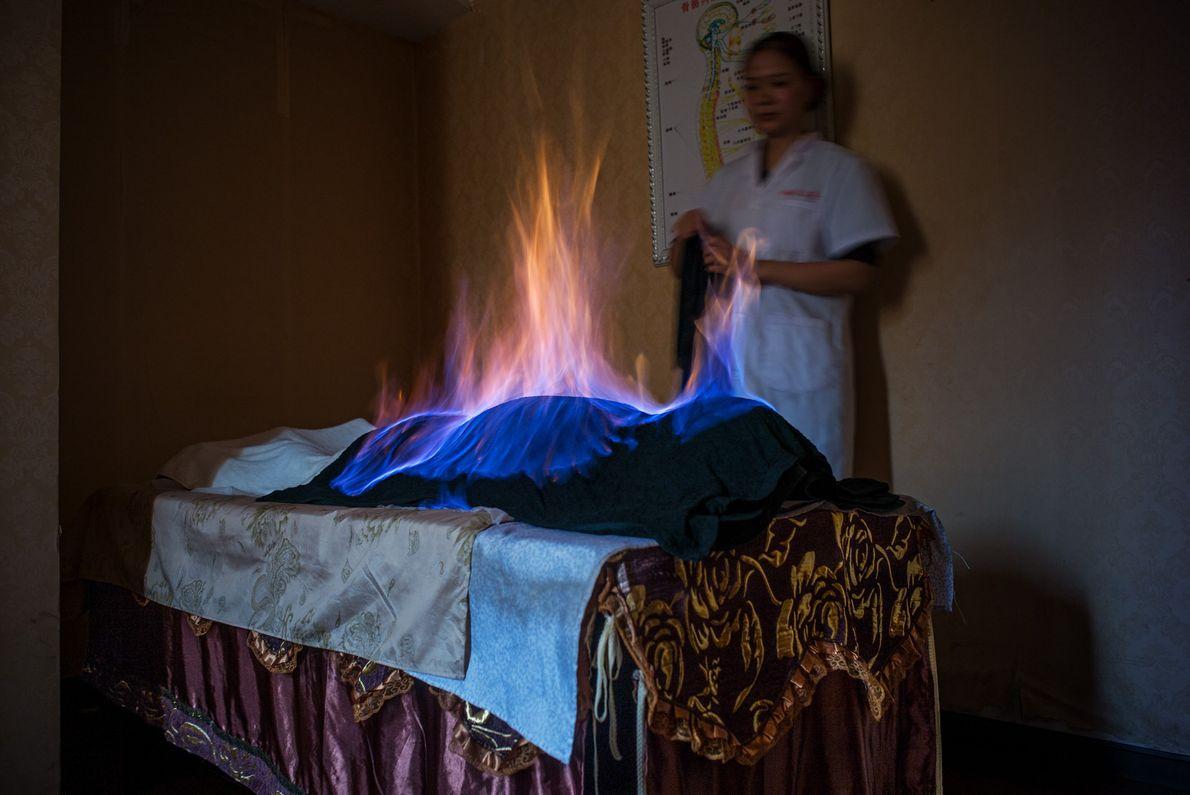 Em uma sessão de tratamento com fogo em Chengdu, China, um pano embebido em álcool é ...