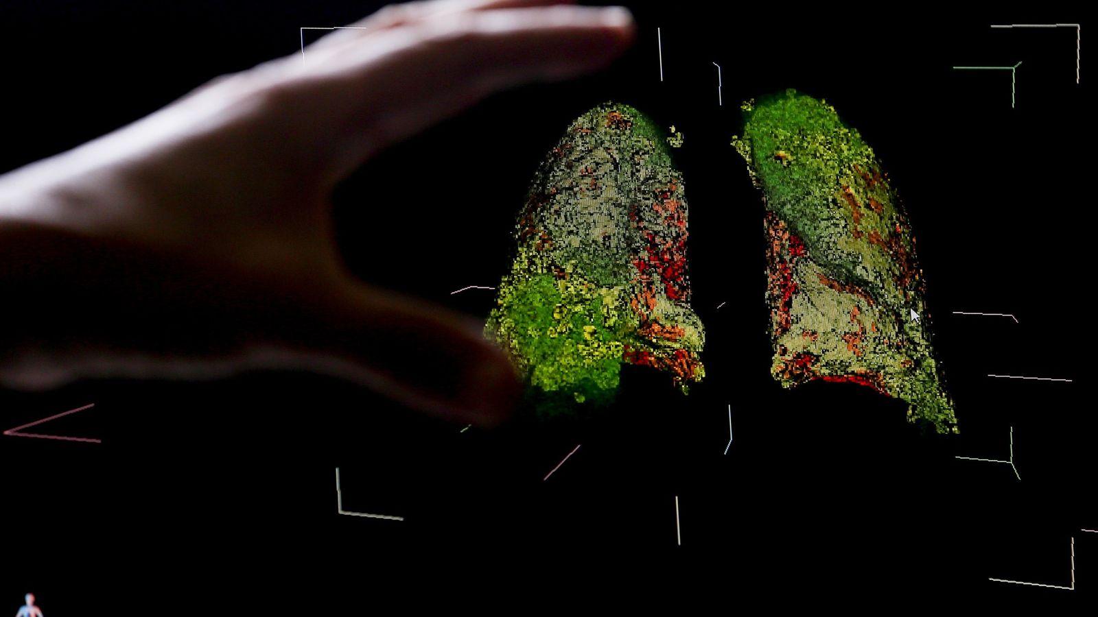 Imagens em 3D de uma tomografia exibem os sintomas da covid-19 nos pulmões e os danos ...