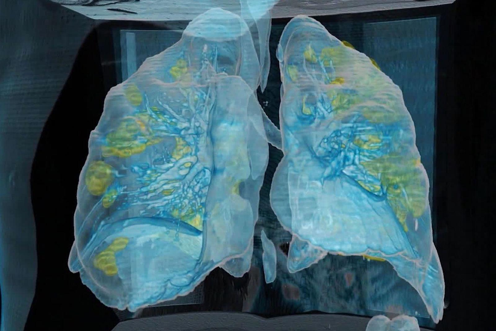 Alguns pacientes respiram normalmente – mas a Covid-19 os sufoca em silêncio