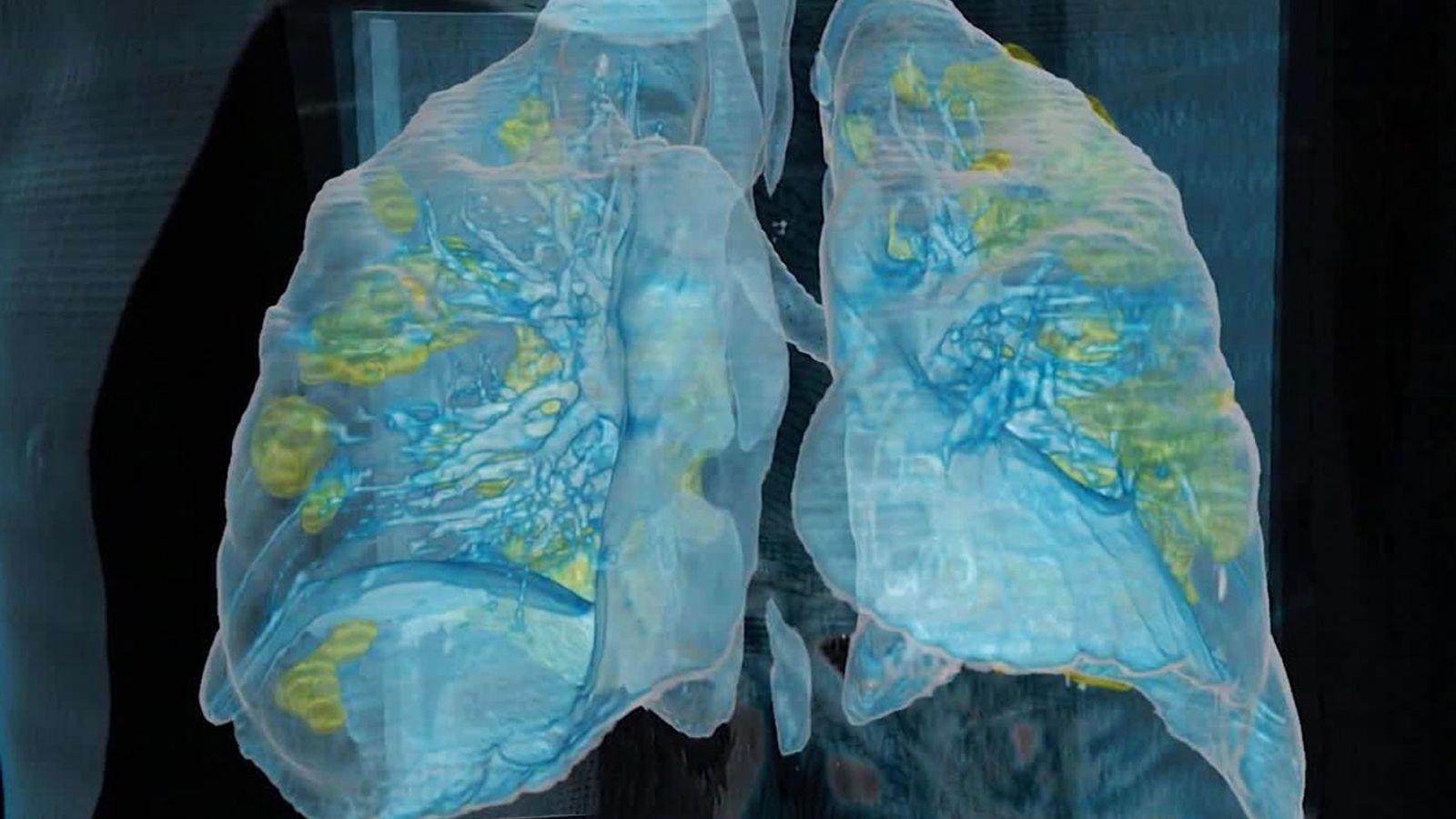 O coronavírus causou danos extensos (amarelo) nos pulmões de um homem de 59 anos que morreu ...