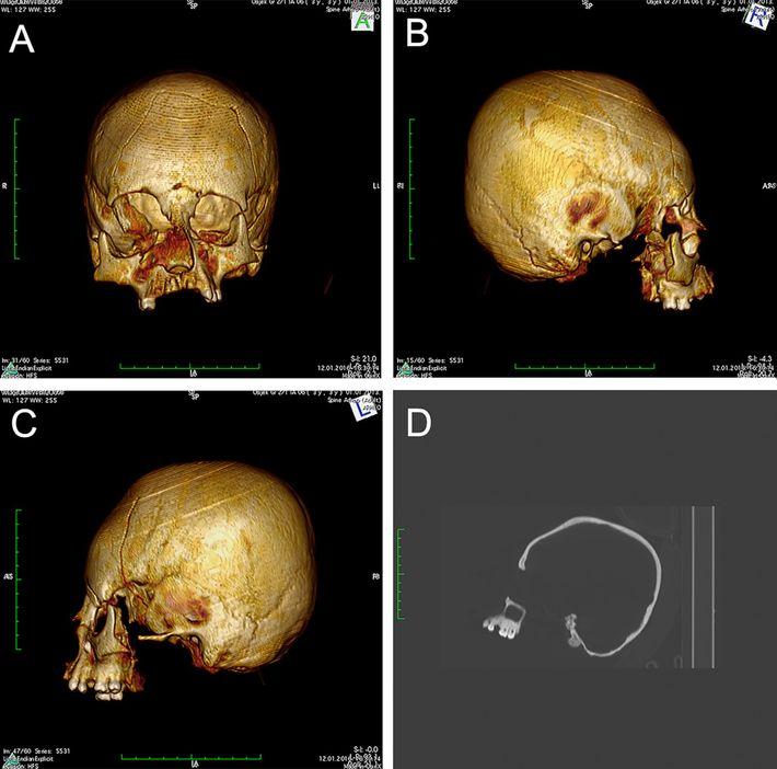 Este crânio alongado e arredondado pertenceu a um adolescente do Oriente Próximo, que foi enterrado em ...