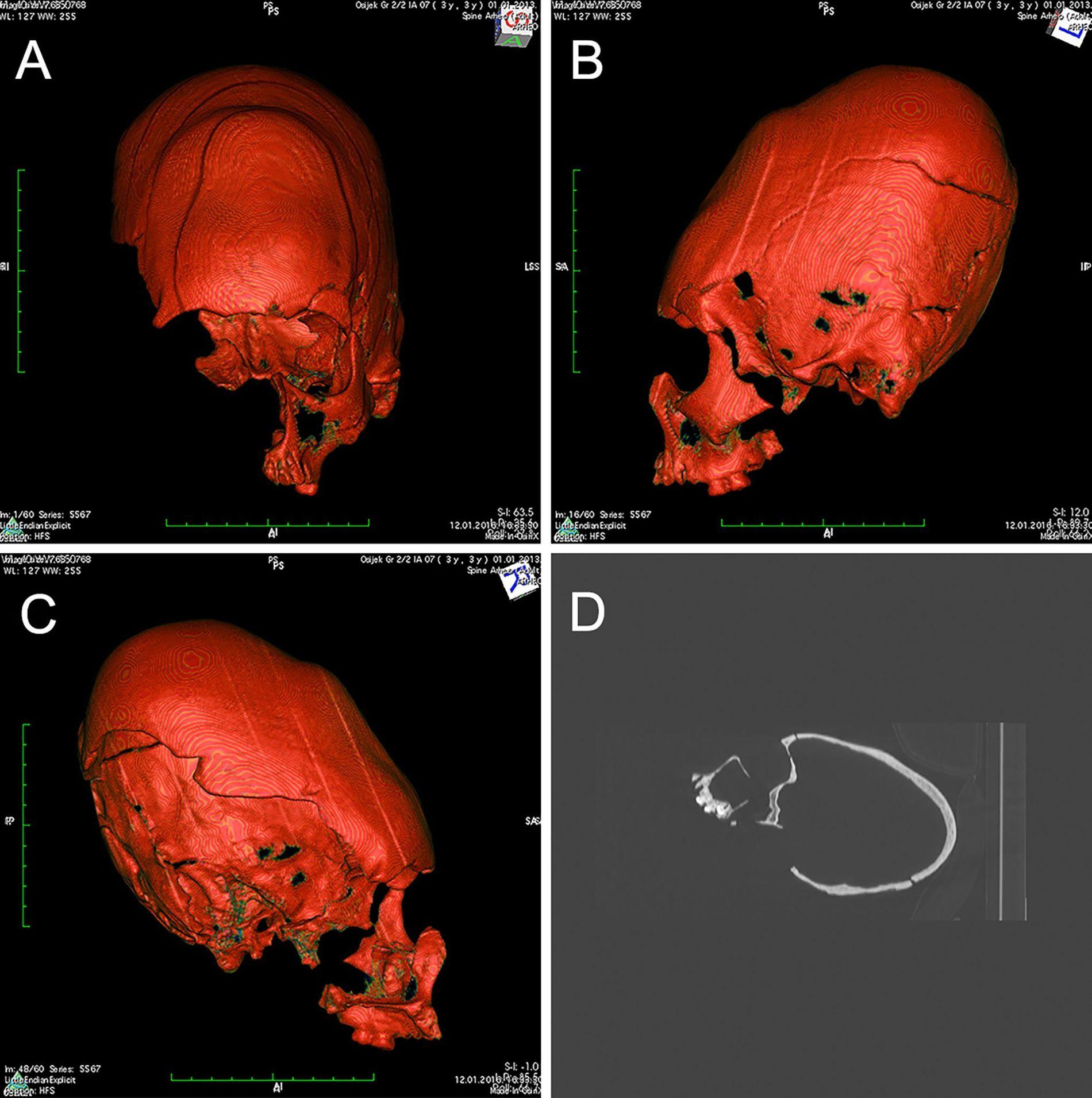 Este crânio extremamente alongado pertenceu a um adolescente com ascendência do leste asiático que morreu há ...