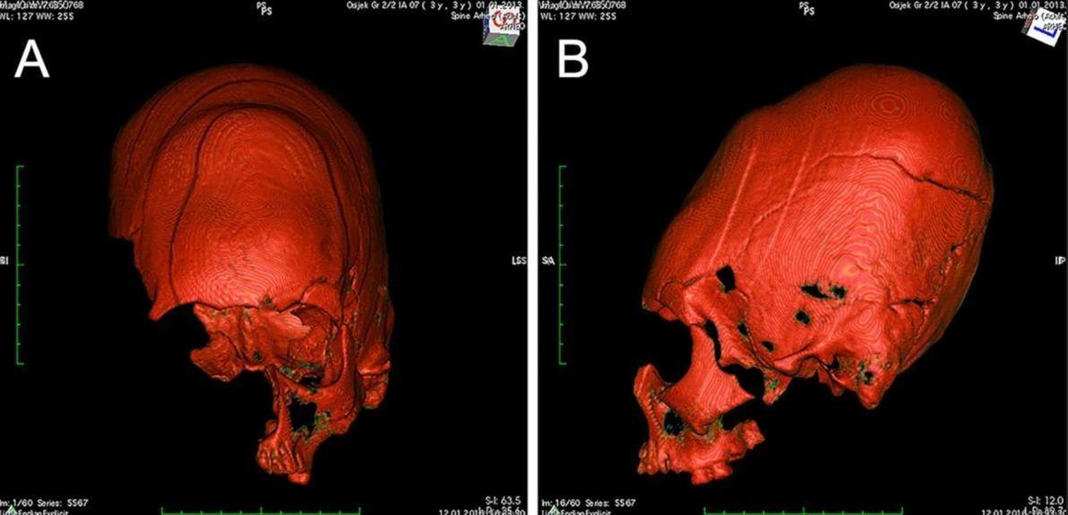 Será que o DNA conseguirá solucionar o mistério dos crânios europeus alongados?