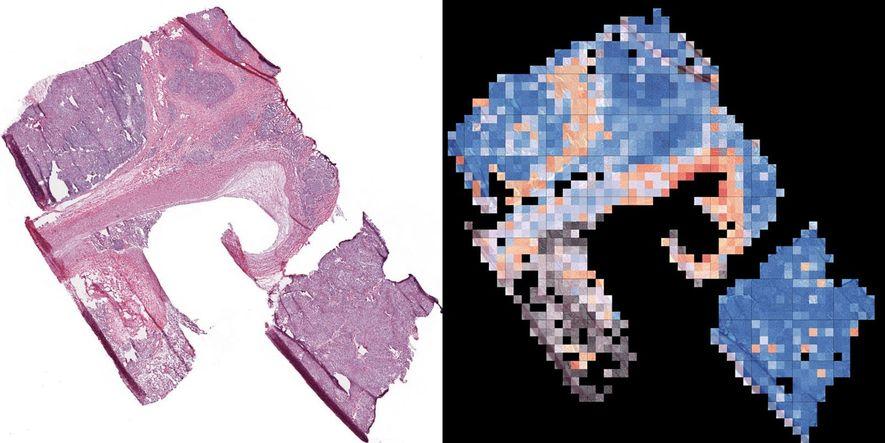 A VISÃO AGUÇADA DA IA – A correta identificação das células cancerosas numa amostra de tecido pulmonar (à esquerda) é crucial para o tratamento. E agora a inteligência artificial ajuda nesse processo. O mesmo sistema de IA que a Google usa para identificar objetos online foi usado para reconhecer células tumorais. O sistema reconheceu tumores (à direita), com a precisão de um ser humano. E definiu a dosagem exata de um remédio para reduzir tumores, evitando ao máximo os efeitos colaterais. — Lori Cuthbert