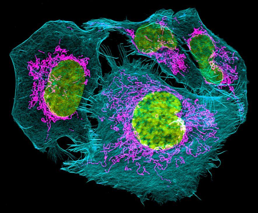 ANÁLISES MELHORES DE PRÓSTATA – Os tumores de próstata de grau elevado podem ser letais, e ...