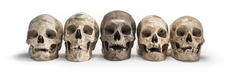 genetica-racismo-cientifico-estudo-de-cranios