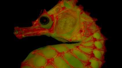 Fotos de esqueletos ganham vida com uso de gelatina