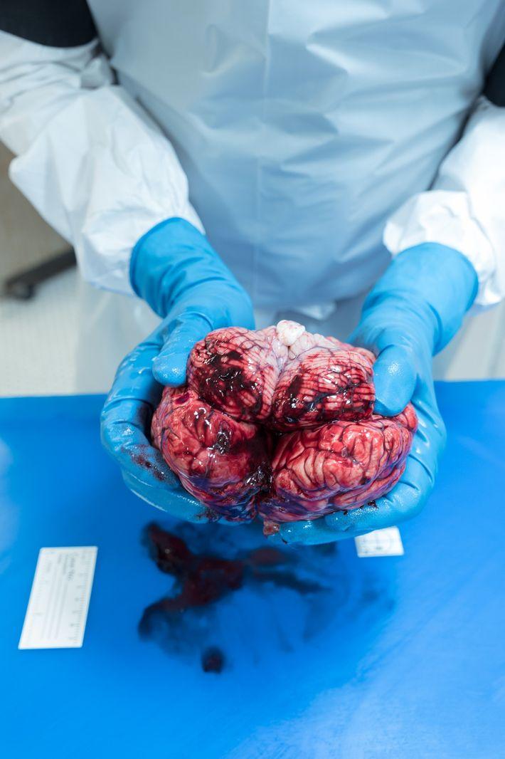 Um cérebro com hemorragia extraído durante uma autópsia.