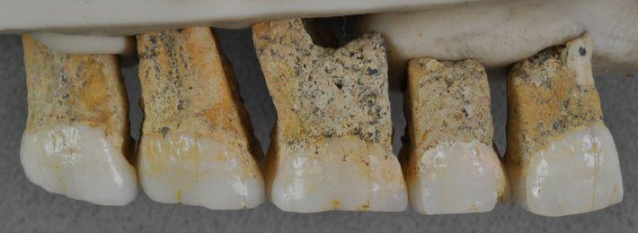 Cinco dos sete dentes atribuídos ao Homo luzonensis. Os dentes têm formatos relativamente simples e tamanhos ...