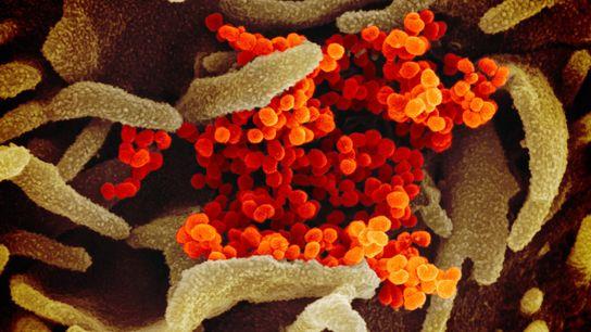 Partículas do vírus SARS-CoV-2 em microfotografia em cores realçadas produzida por microscópio eletrônico são vistas emergindo ...