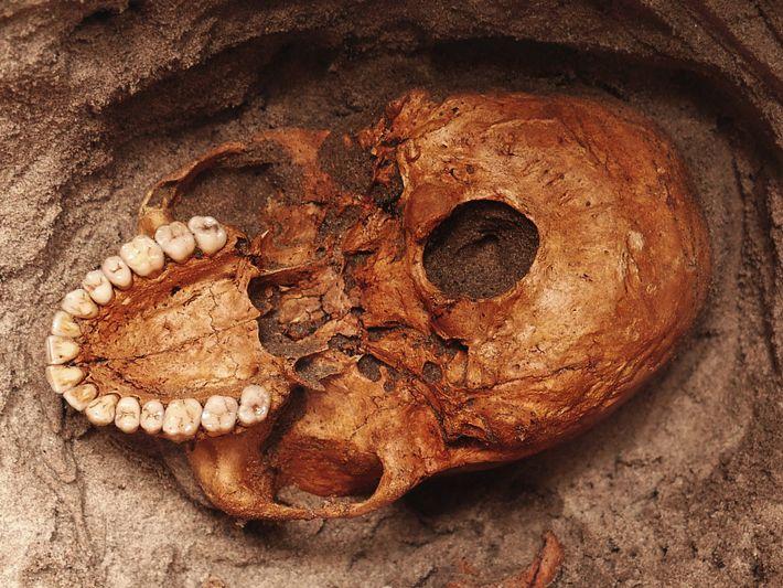 Um crânio humano é revelado na areia cinzenta ao longo do rio Pangani, na Tanzânia, local ...