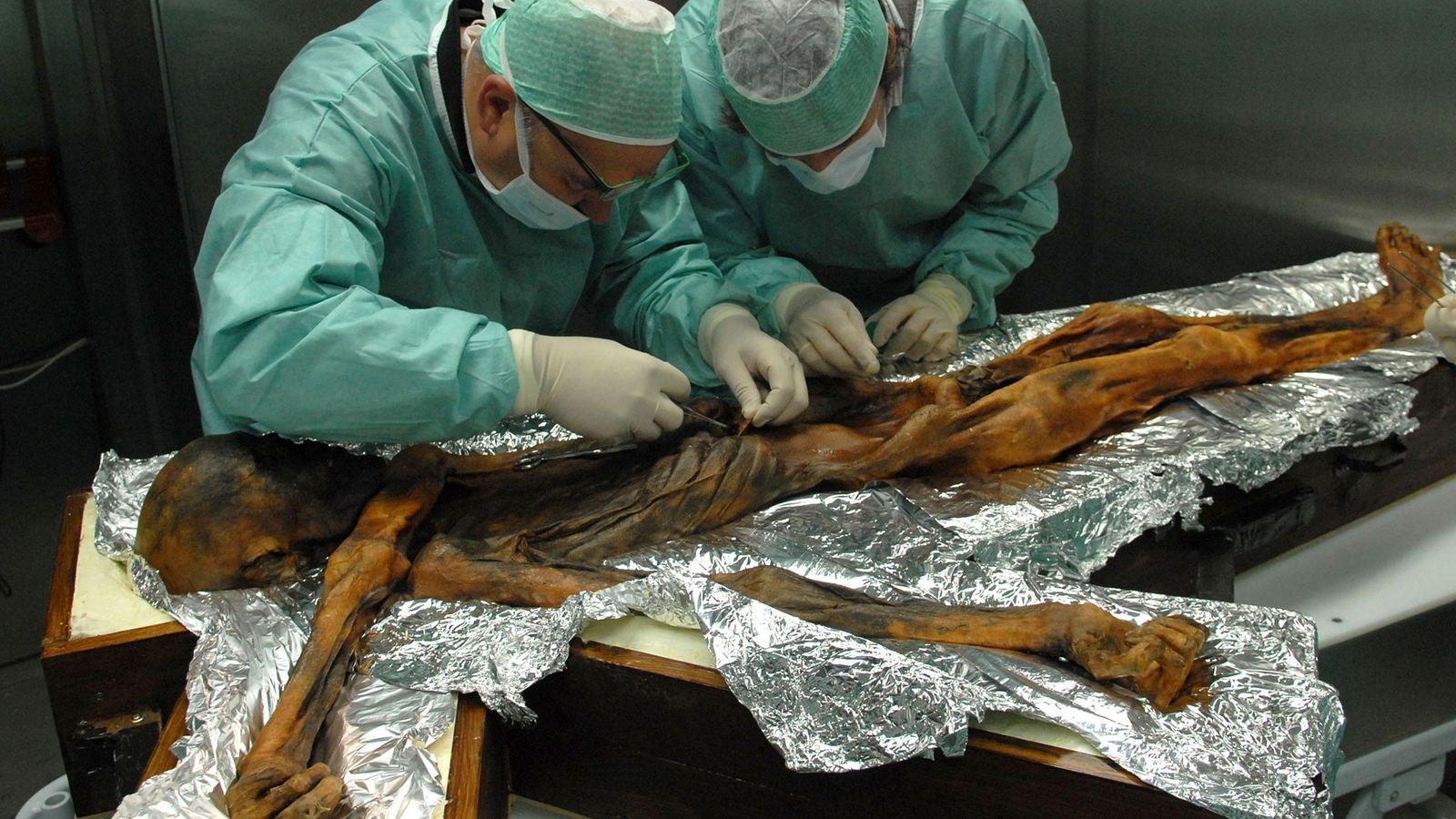 Pesquisadores tiram uma amostra do conteúdo do estômago de Ötzi, o Homem do Gelo, para descobrir ...
