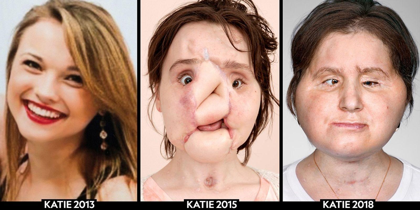 Como um transplante de rosto mudou a vida de uma jovem mulher