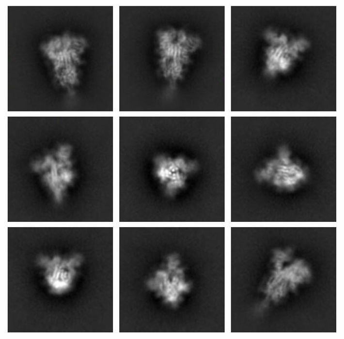 As proteínas são tão pequenas que não é possível utilizar o microscópio óptico comum para tirar ...