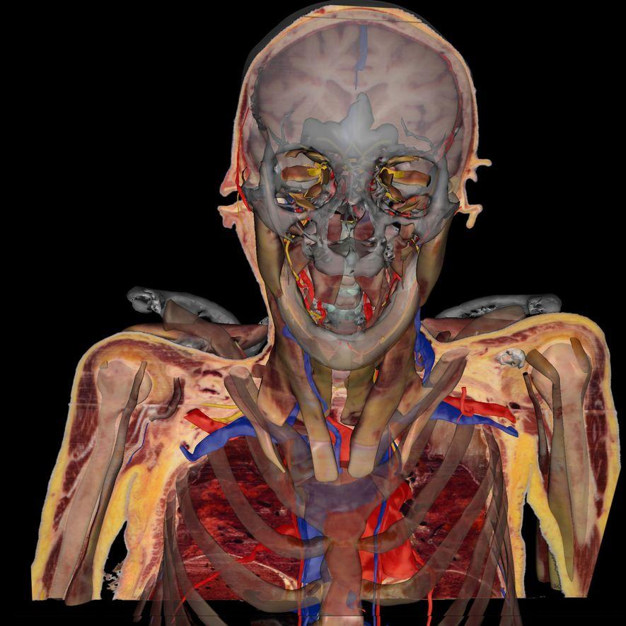 Anatomia em 3D de Susan Potter, criada por Vic Spitzer. Percebe-se na imagem, após a retirada ...