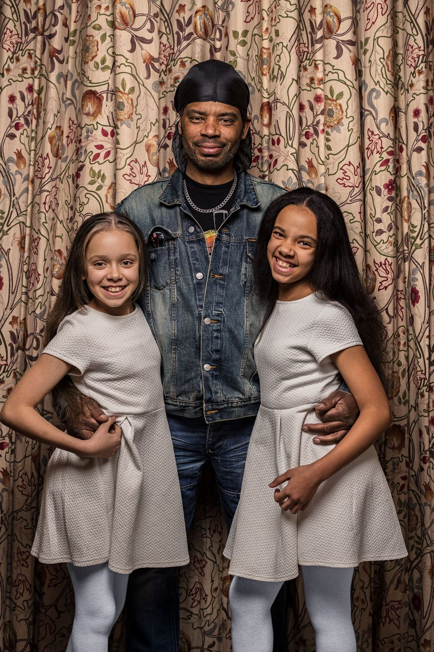 """Michael Biggs vê uma clara semelhança familiar com suas filhas gêmeas, Marcia (esquerda) e Millie: """"As duas têm meu nariz""""."""