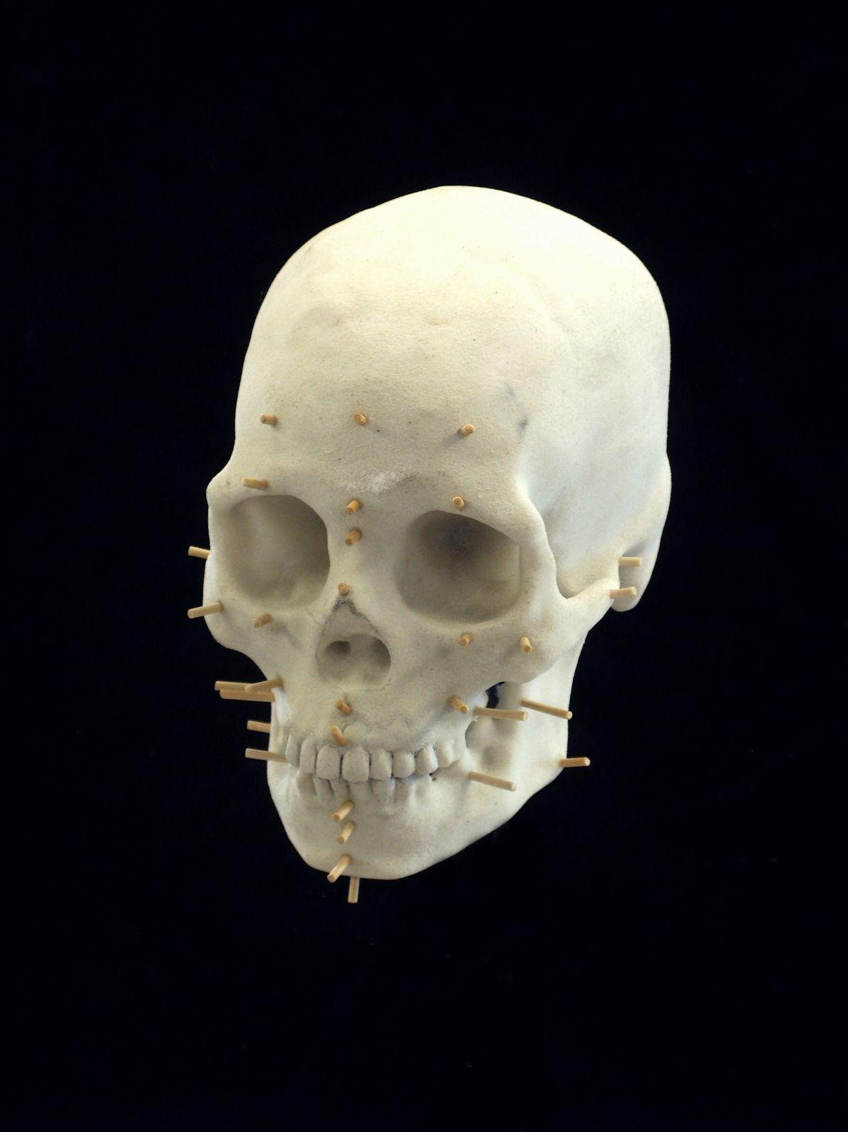 Pinos em molde 3D de crânio